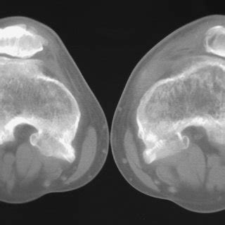Example of a patient with squinting patella due to excess of tibial